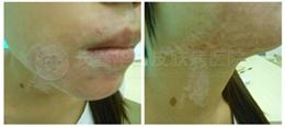 女性面部患白癜风4年多