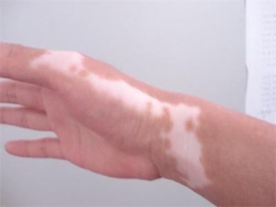 白癜风护理皮肤的方法有什么