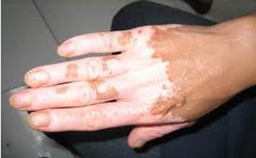 白癜风的饮食禁忌是什么